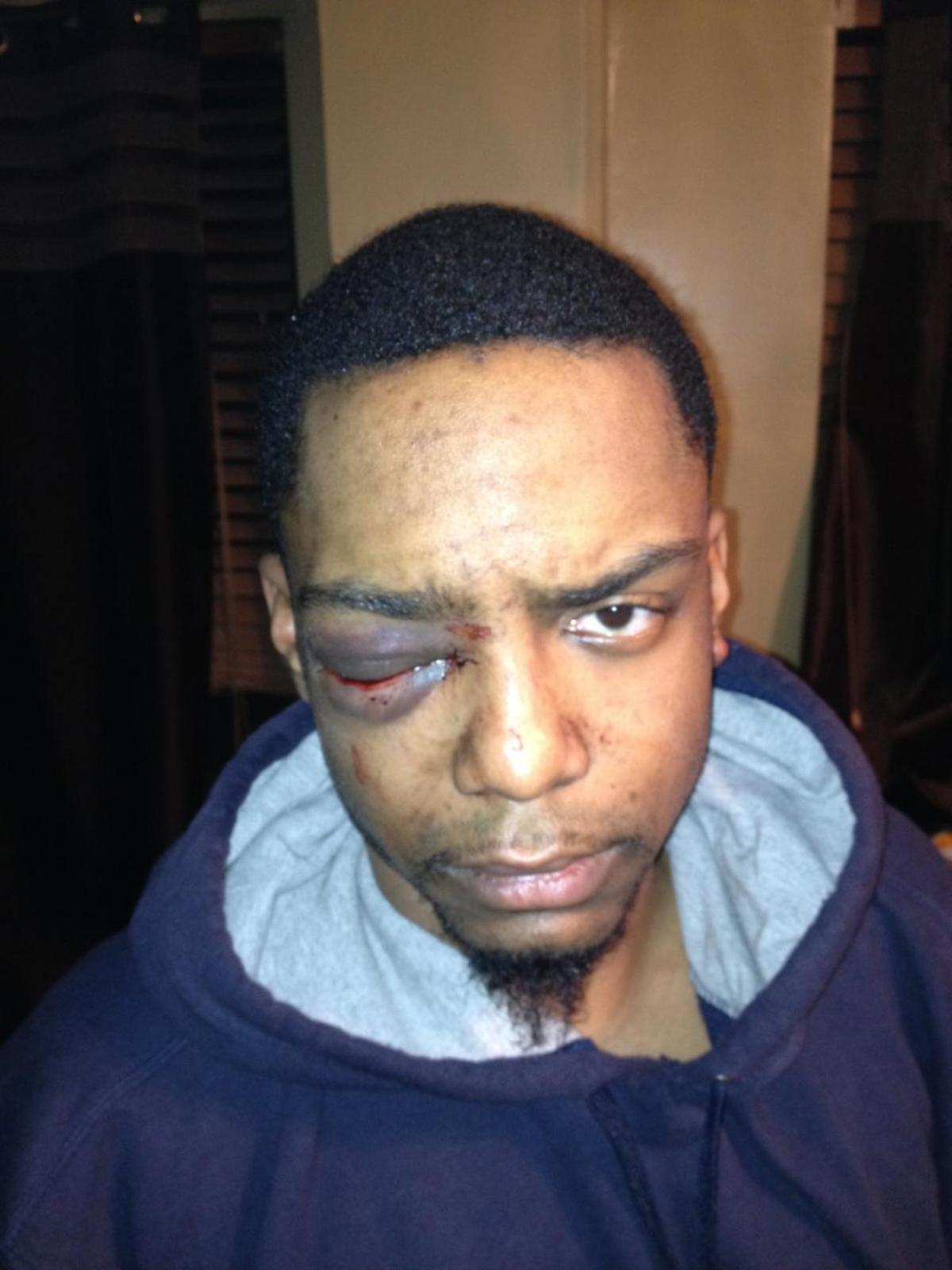C:\NUCDaily\Images\proj5\DNA evidence links Orthodox Jewish man to vicious beating of gay black man.png