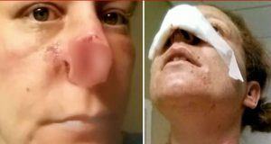 After The Break Up Her Ex-Boyfriend Bit Her Nose Off