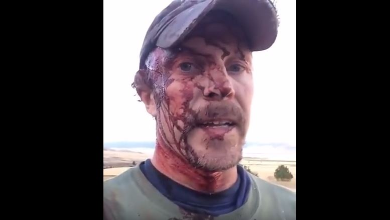 man attacked by grizzly bear video