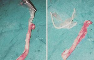 Woman swallowed condom while blowing her boyfriend, went through surgery