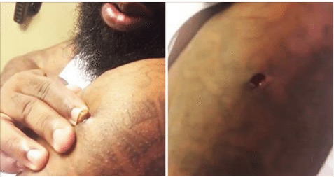 Dude Squeezes Out a Bullet from His Arm Like World's Worst Blackhead