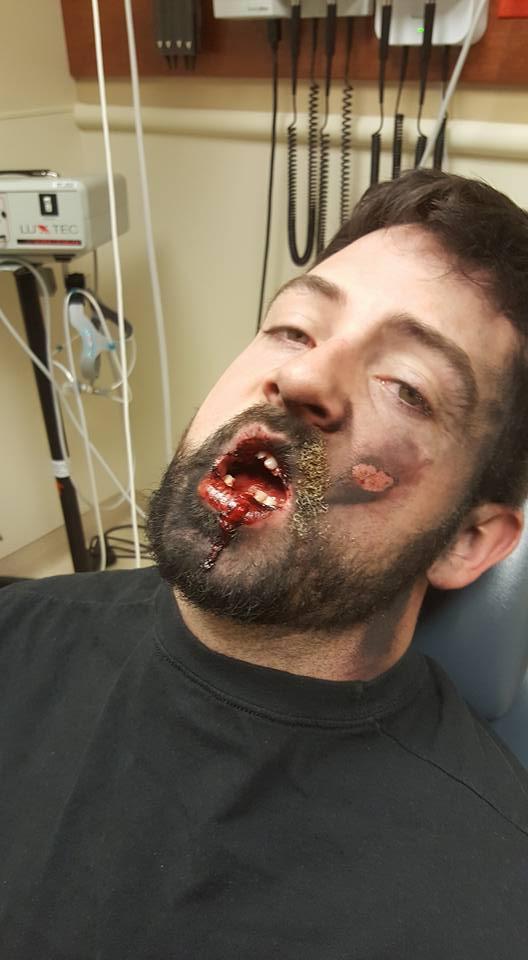 MAN POSTS WARNING ON DANGERS OF VAPING