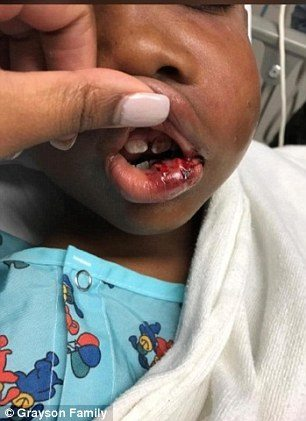 Teacher Arrested After Breaking The Jaw Of 7 Year Old Boy And Knocking Out Two Of His Teeth
