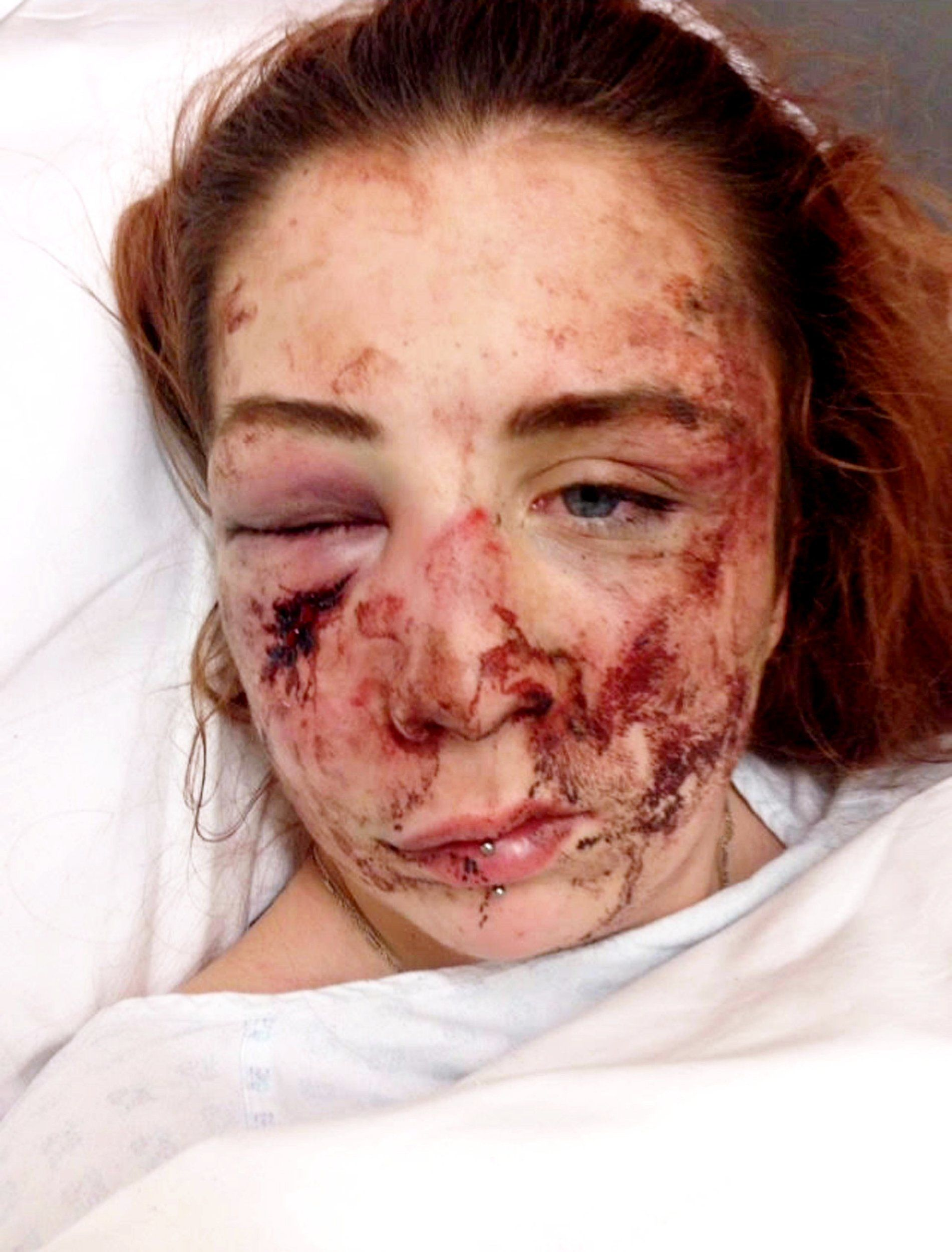 Bully only stopped attack when someone said 'leave her, I think she's dead'